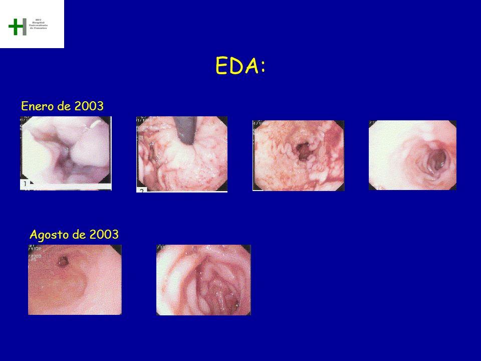 EDA: Enero de 2003 Agosto de 2003