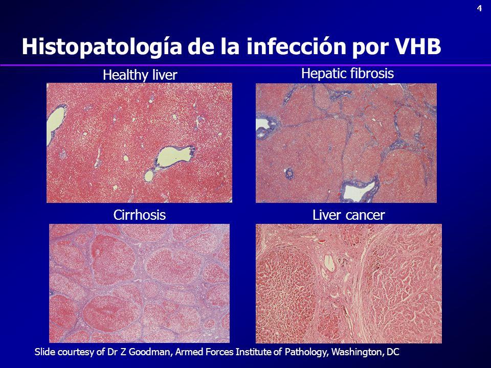 44 Cirrhosis Hepatic fibrosis Liver cancer Healthy liver Histopatología de la infección por VHB Slide courtesy of Dr Z Goodman, Armed Forces Institute