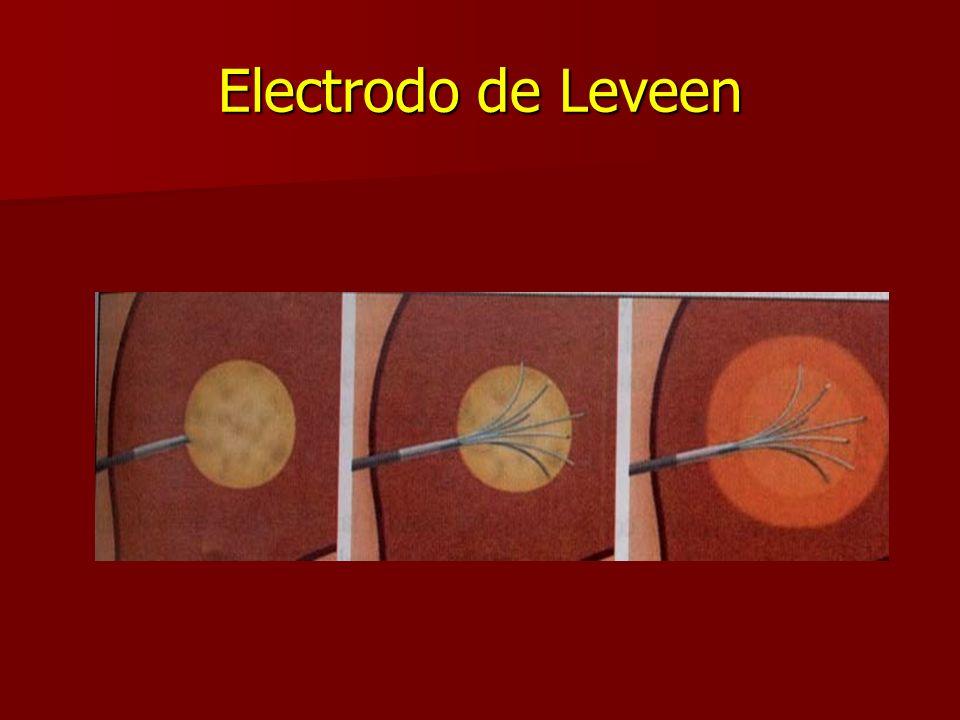 Electrodo de Leveen