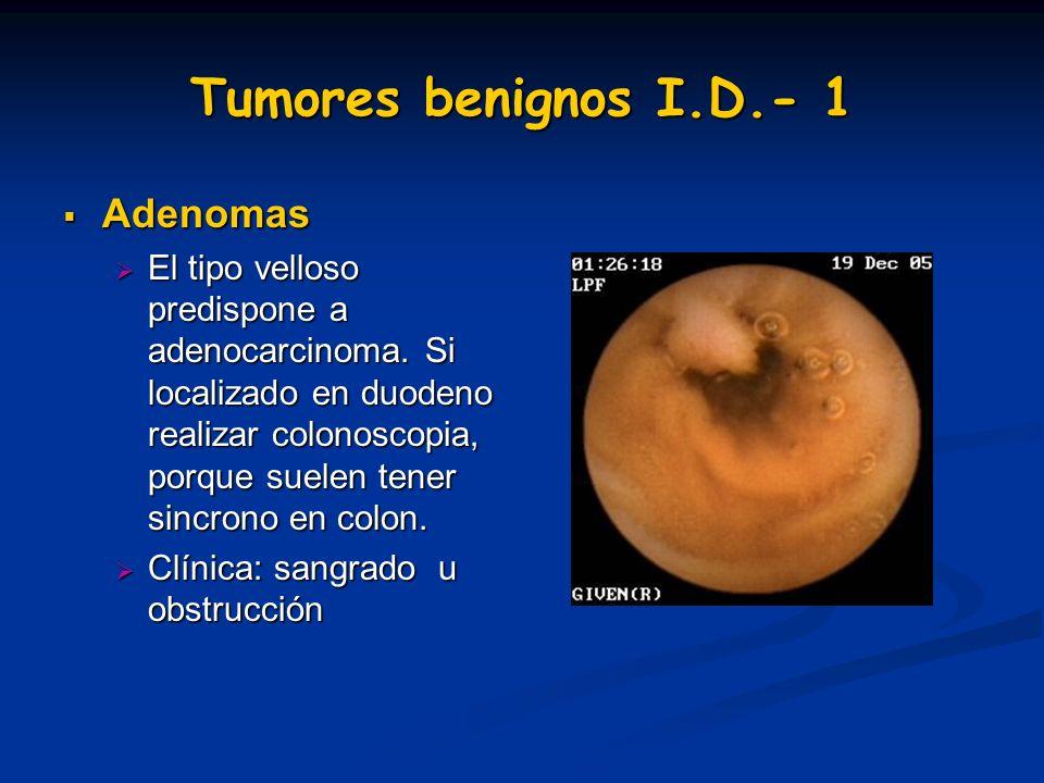 Tumores benignos I.D.- 1 Adenomas Adenomas El tipo velloso predispone a adenocarcinoma. Si localizado en duodeno realizar colonoscopia, porque suelen