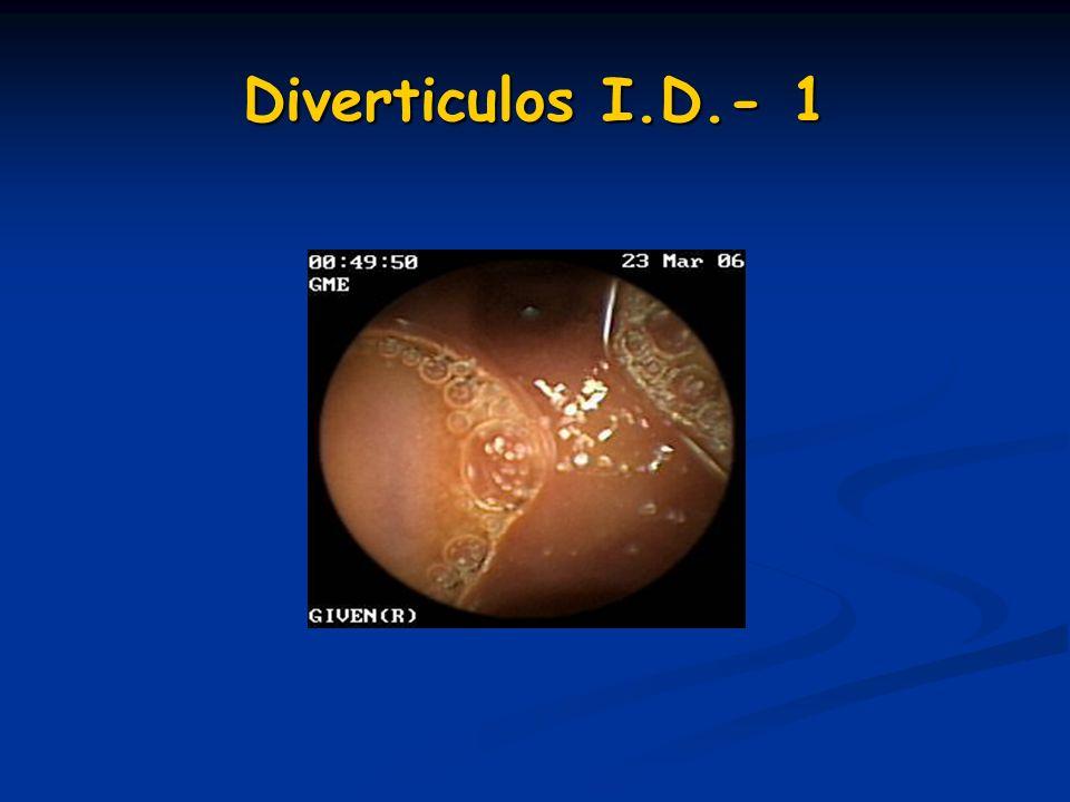 Diverticulos I.D.- 1