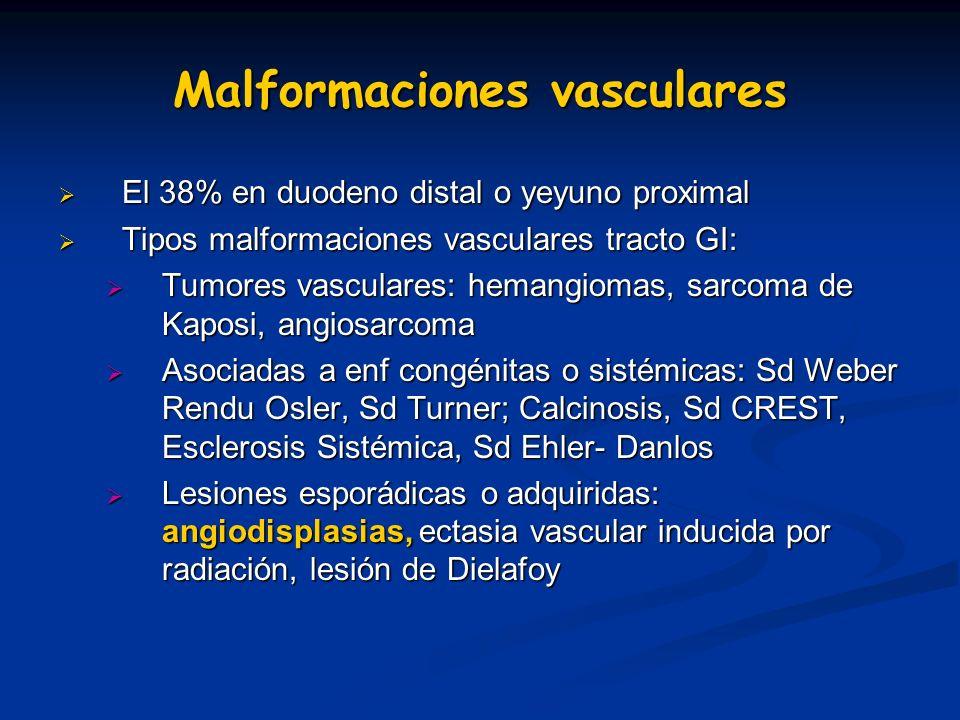 Malformaciones vasculares El 38% en duodeno distal o yeyuno proximal El 38% en duodeno distal o yeyuno proximal Tipos malformaciones vasculares tracto