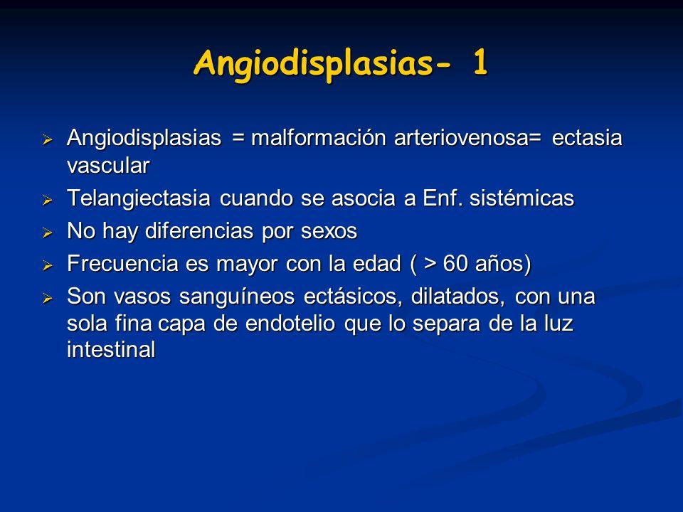 Angiodisplasias- 1 Angiodisplasias = malformación arteriovenosa= ectasia vascular Angiodisplasias = malformación arteriovenosa= ectasia vascular Telan