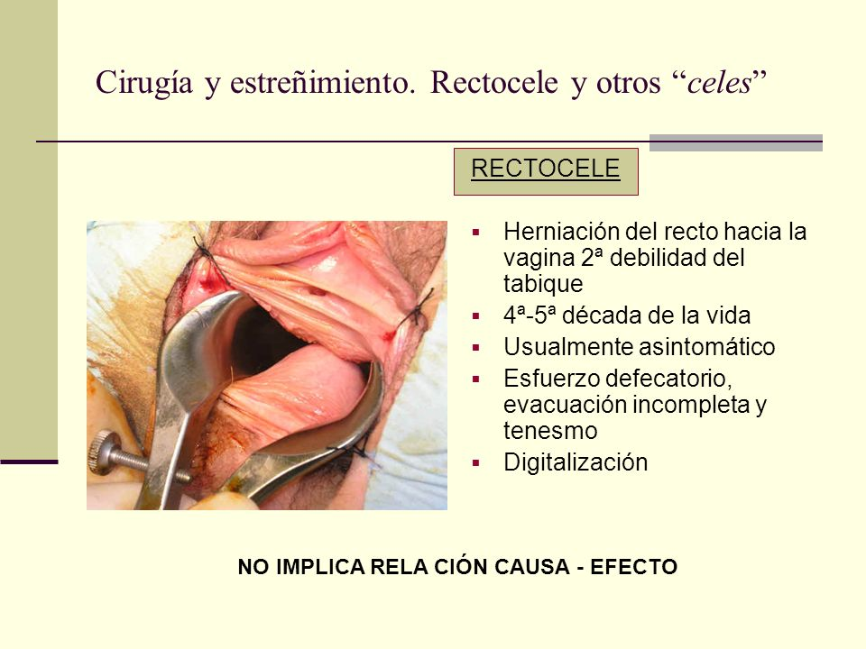Cirugía y estreñimiento. Rectocele y otros celes RECTOCELE Herniación del recto hacia la vagina 2ª debilidad del tabique 4ª-5ª década de la vida Usual