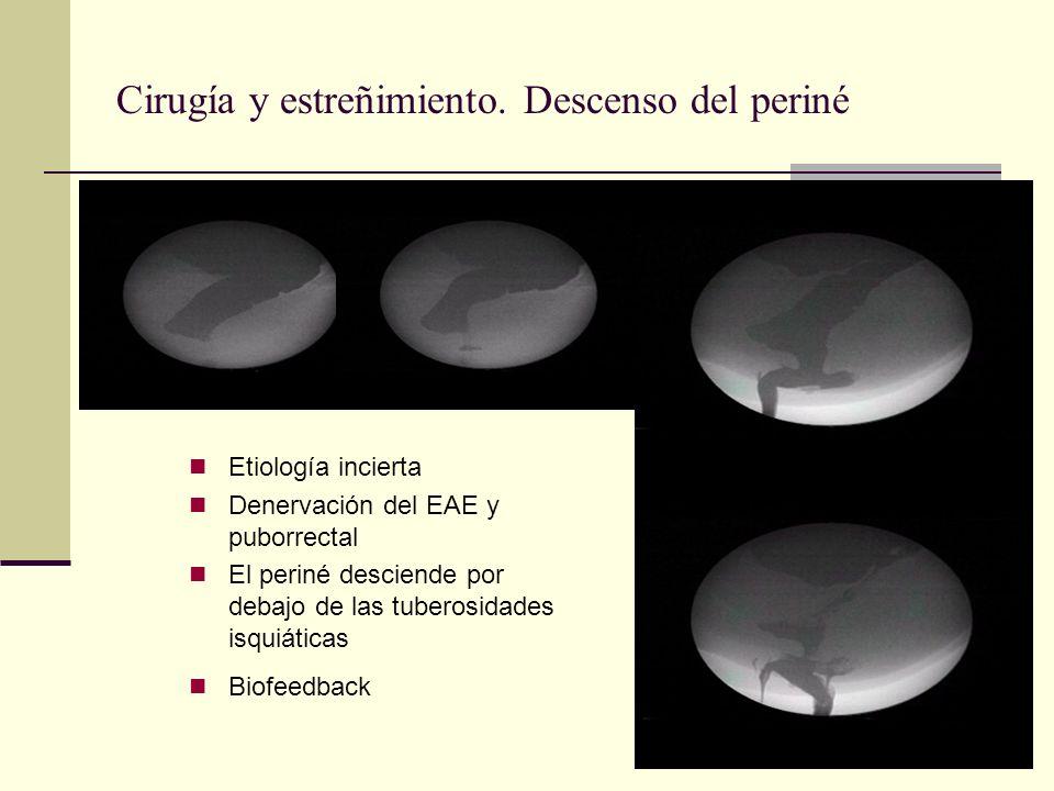 Cirugía y estreñimiento. Descenso del periné Etiología incierta Denervación del EAE y puborrectal El periné desciende por debajo de las tuberosidades