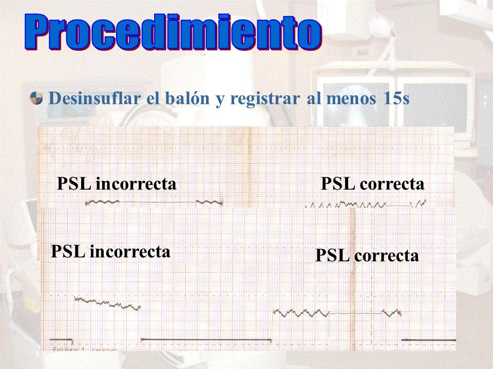 Desinsuflar el balón y registrar al menos 15s PSL incorrectaPSL correcta PSL incorrecta PSL correcta
