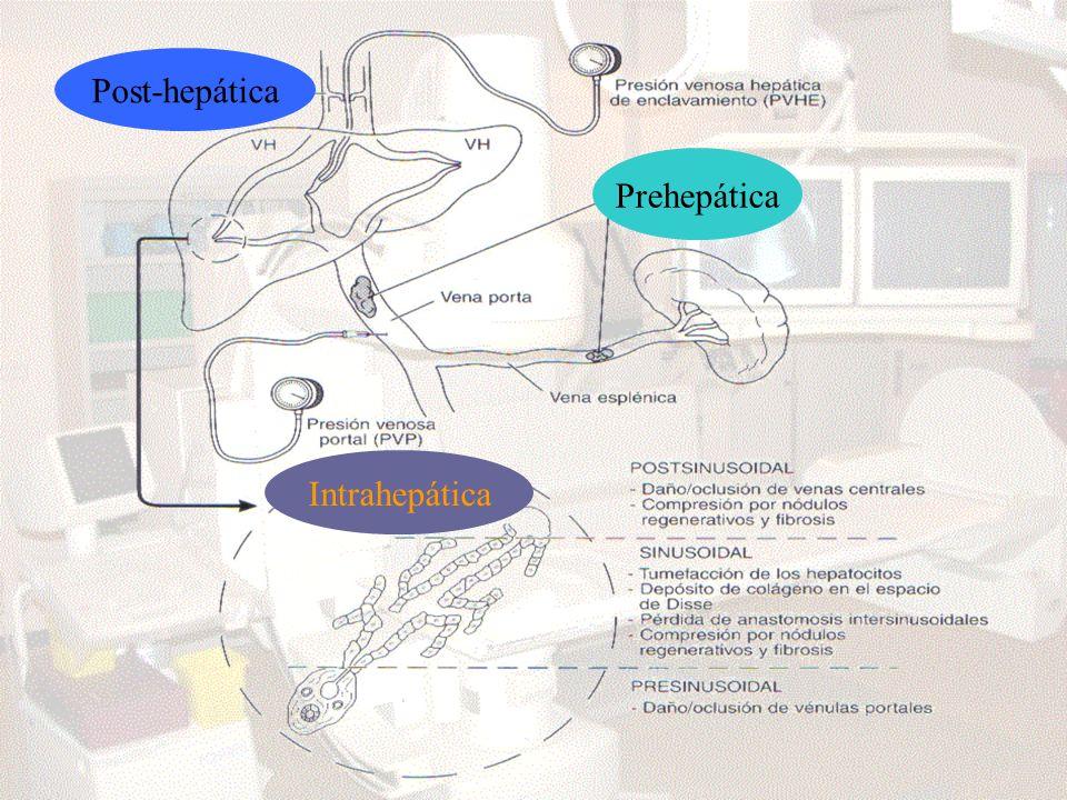 Prehepática Post-hepática Intrahepática