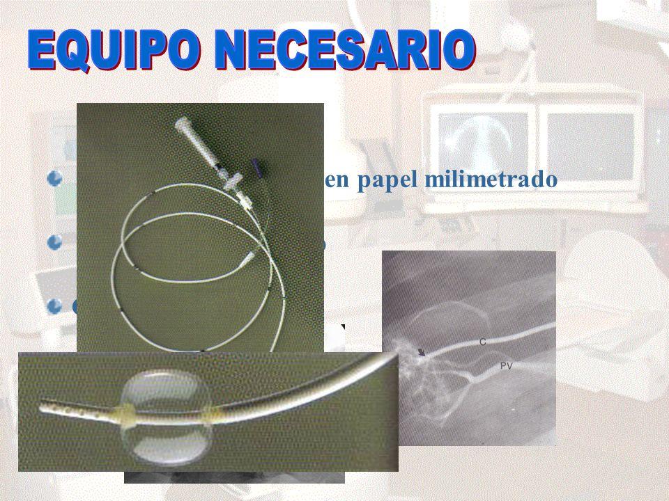 Transductor de cuarzo Catéter balón oclusión Aparato de rayos X Polígrafo con registro en papel milimetrado Transductor de cuarzo Catéter balón oclusión Aparato de rayos X
