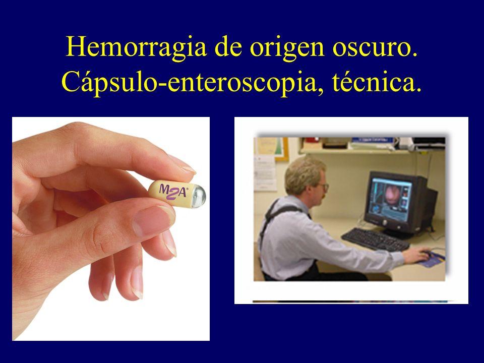 Hemorragia de origen oscuro. Cápsulo-enteroscopia, técnica.
