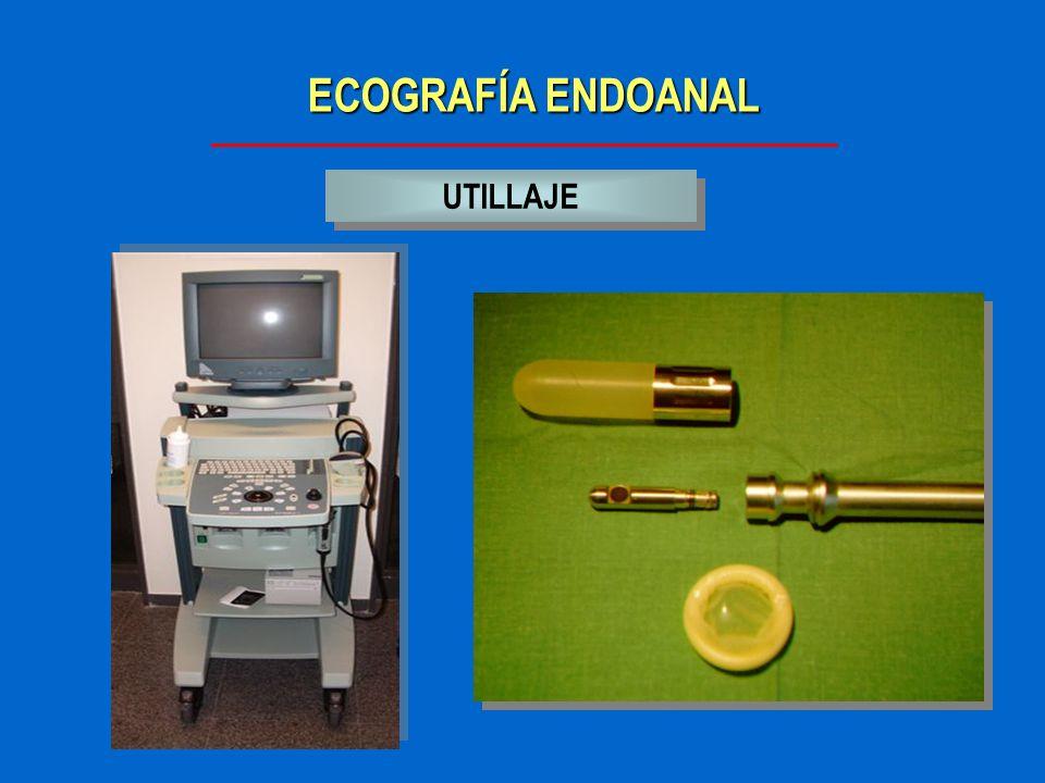 ECOGRAFÍA ENDOANAL LIMITACIONES Dolor del paciente Distancia de las lesiones Estenosis
