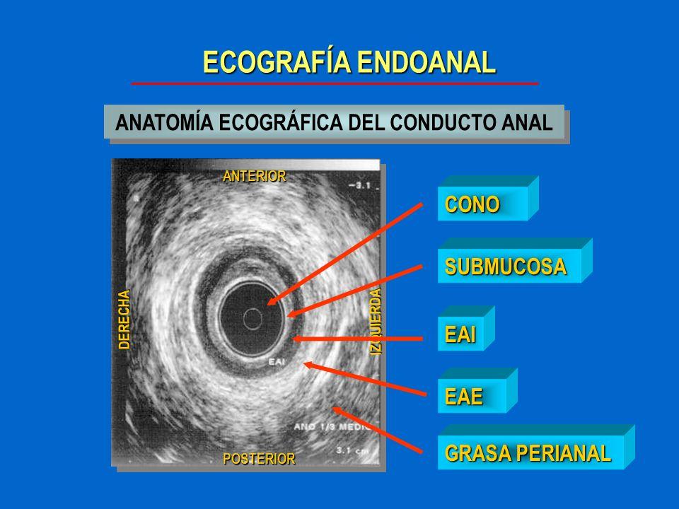 ECOGRAFÍA ENDOANAL CONCLUSIONES La ECOGRAFIA ANAL es una exploración IMPRESCINDIBLE en el diagnóstico de la INCONTINENCIA FECAL,la SEPSIS PERIANAL y en las NEOPLASIAS DE ANO.