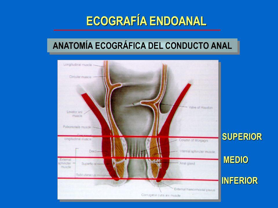 ECOGRAFÍA ENDOANAL ANATOMÍA ECOGRÁFICA DEL CONDUCTO ANAL Tercio superior canal anal