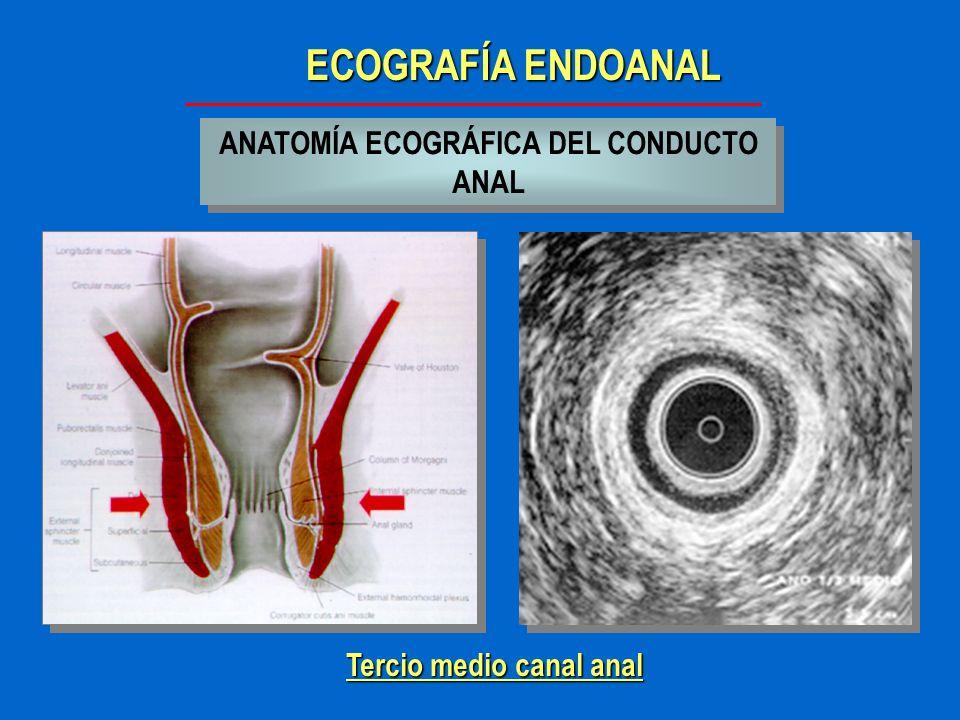 ECOGRAFÍA ENDOANAL ANATOMÍA ECOGRÁFICA DEL CONDUCTO ANAL Tercio inferior canal anal