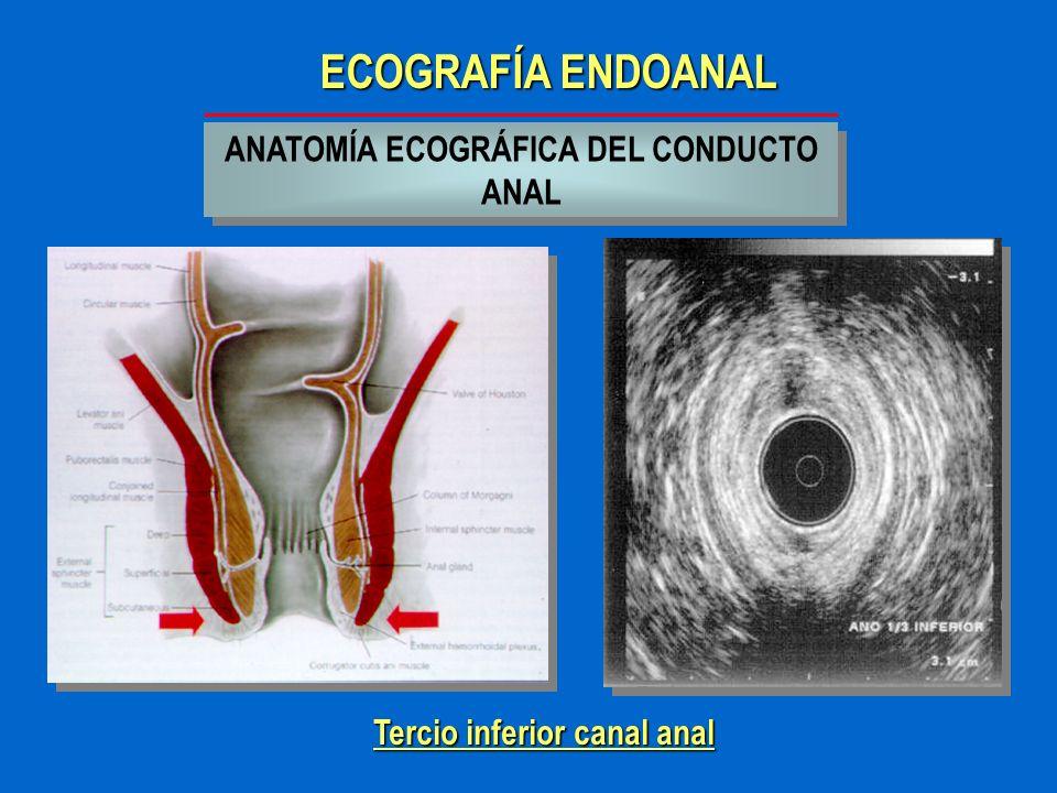 ECOGRAFÍA ENDOANAL INDICACIONES MORFOLOGIA DEL APARATO ESFINTERIANO ANAL MORFOLOGIA DEL APARATO ESFINTERIANO ANAL INCONTINENCIA FECAL INCONTINENCIA FECAL SEPSIS PERIANAL ( abscesos y fístulas ) SEPSIS PERIANAL ( abscesos y fístulas ) CANCER DE ANO CANCER DE ANORECTOCELE PROLAPSO RECTAL PERINE DESCENDIDO ANISMO....