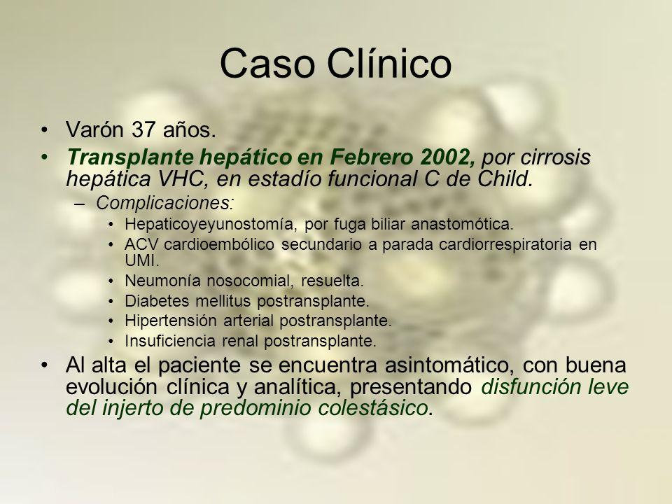 HEPATITIS COLESTÁSICA FIBROSANTE Forma manifestación menos frecuente de recidiva VHC.