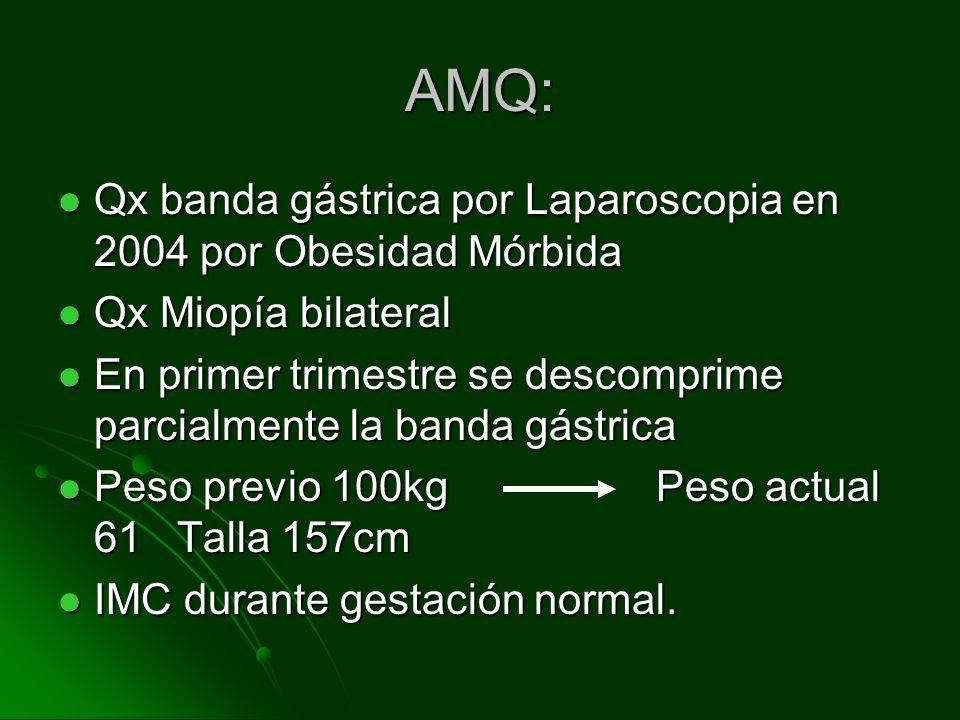 AMQ: Qx banda gástrica por Laparoscopia en 2004 por Obesidad Mórbida Qx banda gástrica por Laparoscopia en 2004 por Obesidad Mórbida Qx Miopía bilater