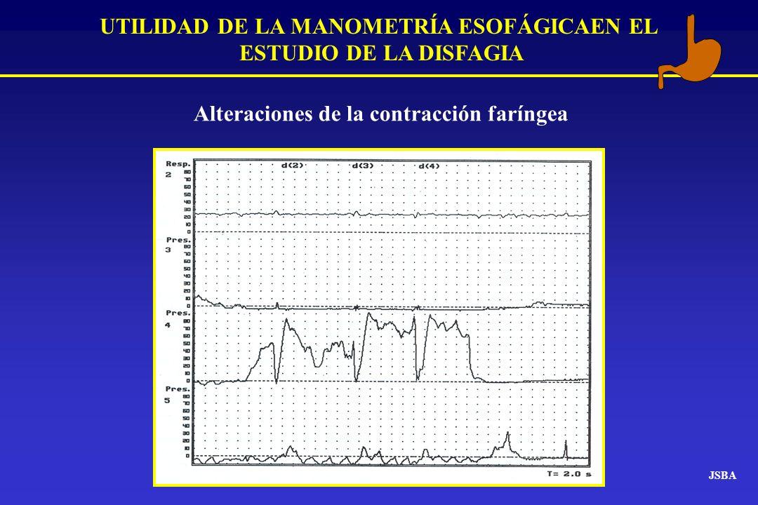 JSBA UTILIDAD DE LA MANOMETRÍA ESOFÁGICAEN EL ESTUDIO DE LA DISFAGIA Alteraciones de la contracción faríngea