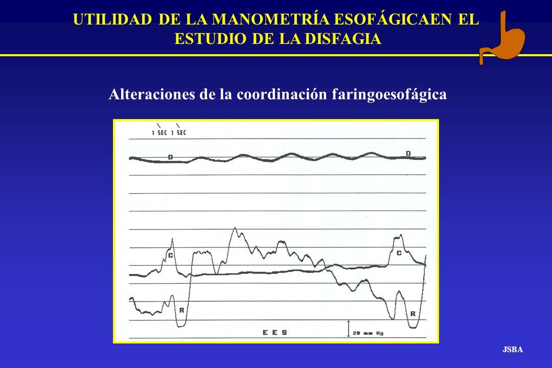 JSBA UTILIDAD DE LA MANOMETRÍA ESOFÁGICAEN EL ESTUDIO DE LA DISFAGIA Alteraciones de la coordinación faringoesofágica