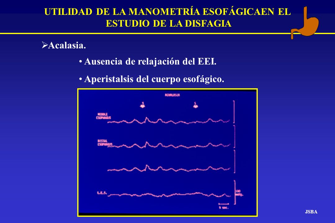 JSBA UTILIDAD DE LA MANOMETRÍA ESOFÁGICAEN EL ESTUDIO DE LA DISFAGIA Acalasia. Ausencia de relajación del EEI. Aperistalsis del cuerpo esofágico.