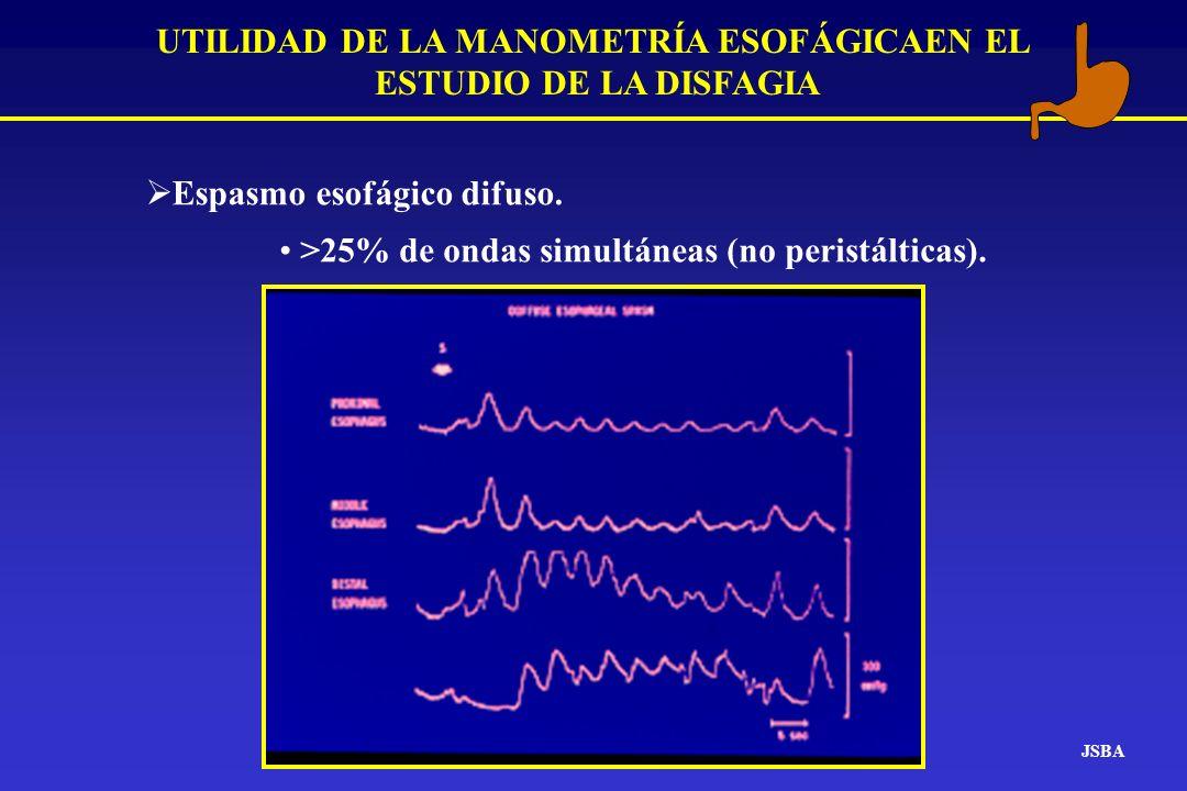 JSBA UTILIDAD DE LA MANOMETRÍA ESOFÁGICAEN EL ESTUDIO DE LA DISFAGIA Espasmo esofágico difuso. >25% de ondas simultáneas (no peristálticas).