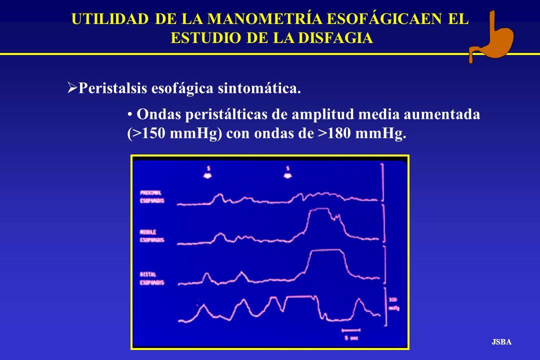 JSBA UTILIDAD DE LA MANOMETRÍA ESOFÁGICAEN EL ESTUDIO DE LA DISFAGIA Peristalsis esofágica sintomática. Ondas peristálticas de amplitud media aumentad