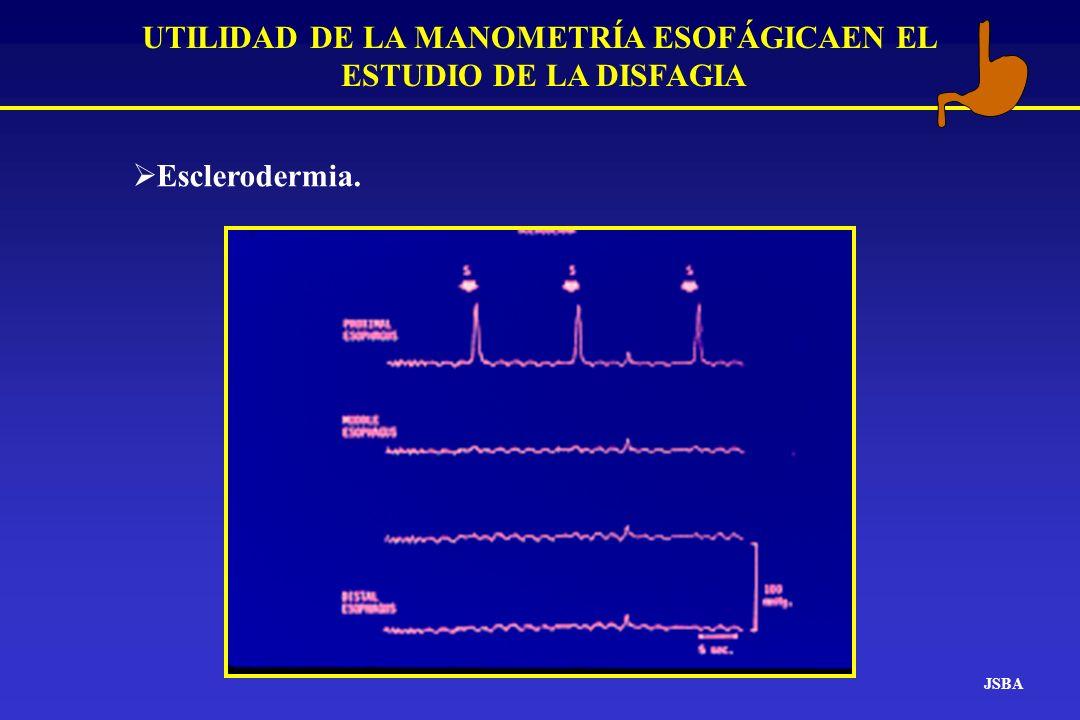 JSBA UTILIDAD DE LA MANOMETRÍA ESOFÁGICAEN EL ESTUDIO DE LA DISFAGIA Esclerodermia.