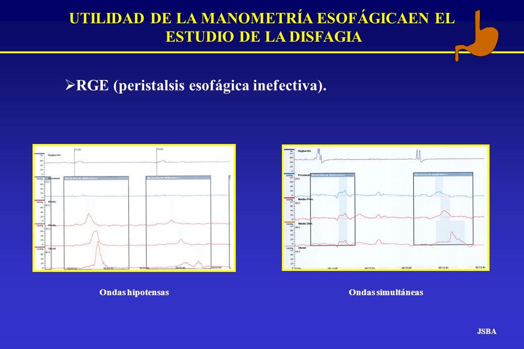 JSBA UTILIDAD DE LA MANOMETRÍA ESOFÁGICAEN EL ESTUDIO DE LA DISFAGIA RGE (peristalsis esofágica inefectiva). Ondas hipotensasOndas simultáneas