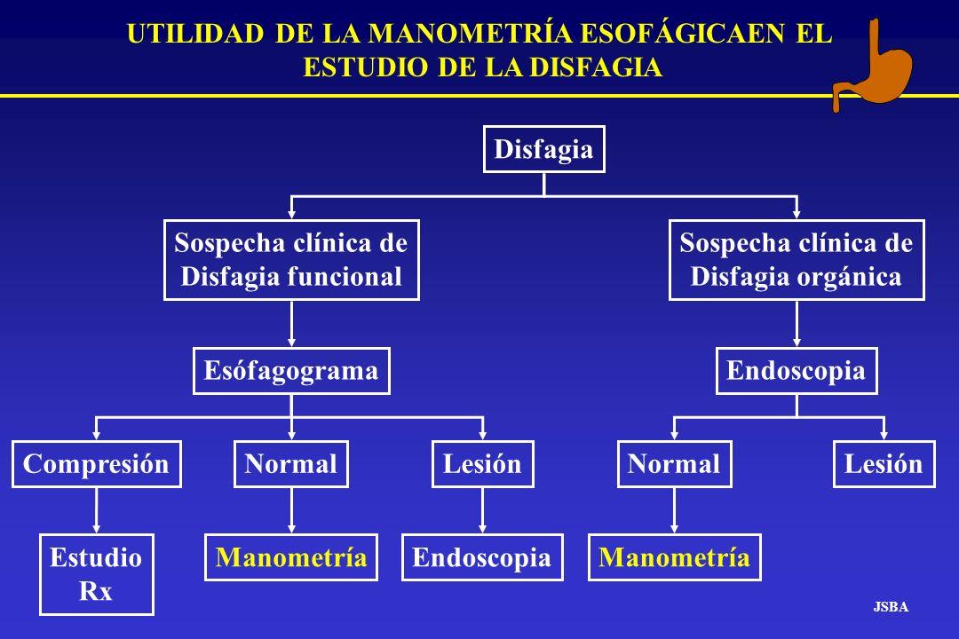 JSBA UTILIDAD DE LA MANOMETRÍA ESOFÁGICAEN EL ESTUDIO DE LA DISFAGIA Disfagia Sospecha clínica de Disfagia orgánica Endoscopia LesiónCompresión Estudi