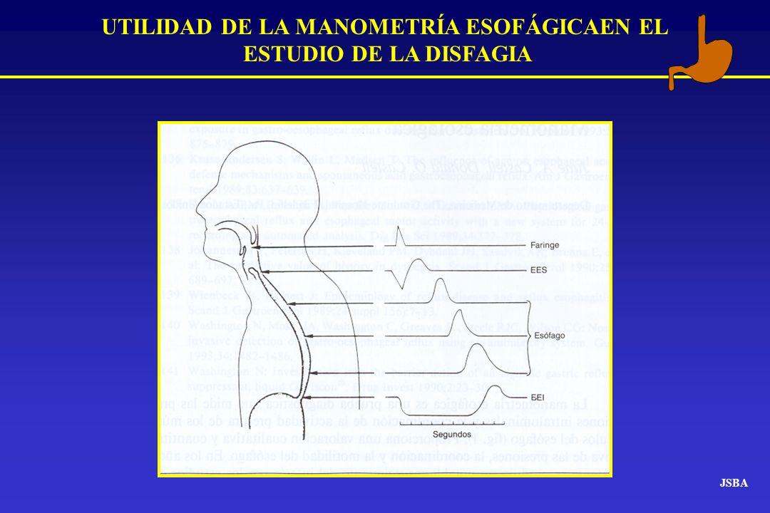 JSBA UTILIDAD DE LA MANOMETRÍA ESOFÁGICAEN EL ESTUDIO DE LA DISFAGIA Disfagia Sospecha clínica de Disfagia orgánica Endoscopia LesiónCompresión Estudio Rx Sospecha clínica de Disfagia funcional Esófagograma Normal Manometría Lesión Endoscopia Normal Manometría