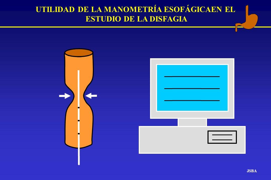UTILIDAD DE LA MANOMETRÍA ESOFÁGICAEN EL ESTUDIO DE LA DISFAGIA JSBA Disfagia Disfagia orofaríngea o de transferencia.
