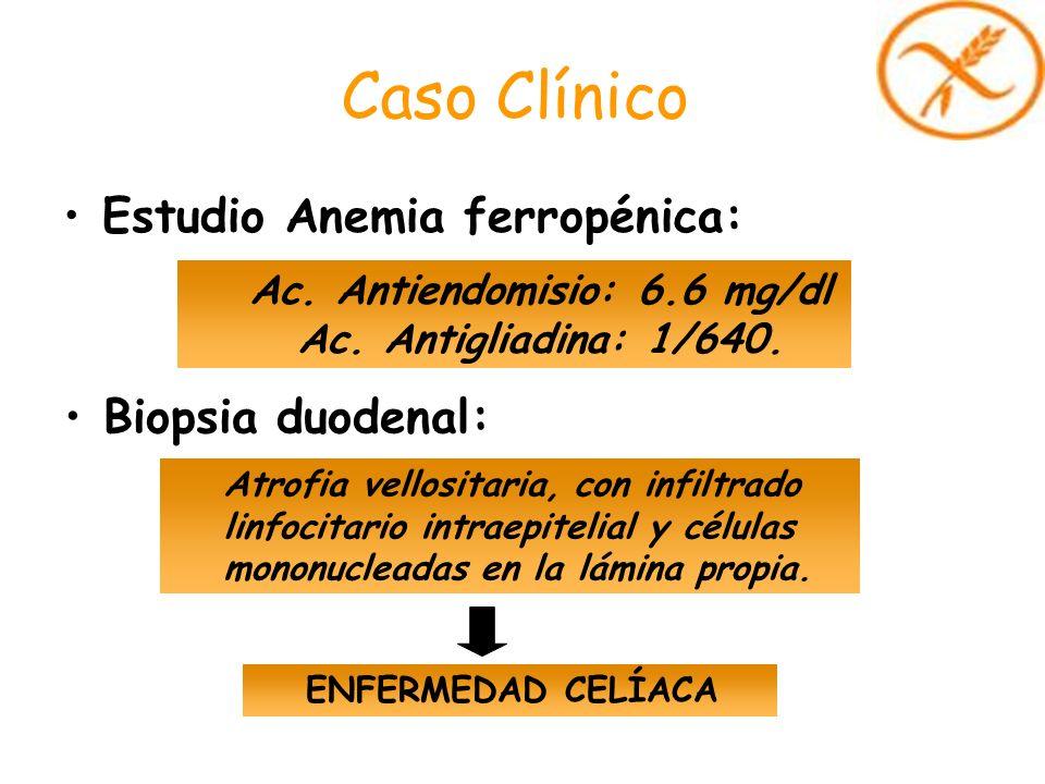 Caso Clínico Estudio Anemia ferropénica: Ac. Antiendomisio: 6.6 mg/dl Ac. Antigliadina: 1/640. Atrofia vellositaria, con infiltrado linfocitario intra