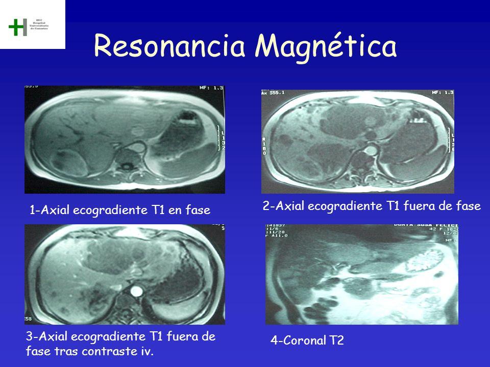 Resonancia Magnética 1-Axial ecogradiente T1 en fase 2-Axial ecogradiente T1 fuera de fase 3-Axial ecogradiente T1 fuera de fase tras contraste iv. 4-