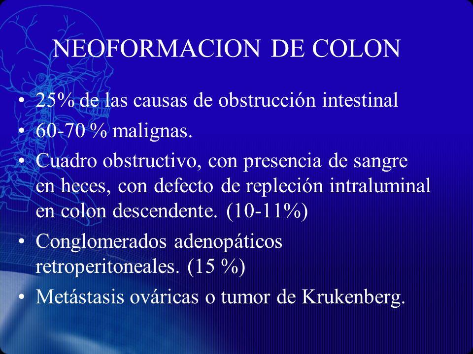 NEOFORMACION DE COLON 25% de las causas de obstrucción intestinal 60-70 % malignas. Cuadro obstructivo, con presencia de sangre en heces, con defecto