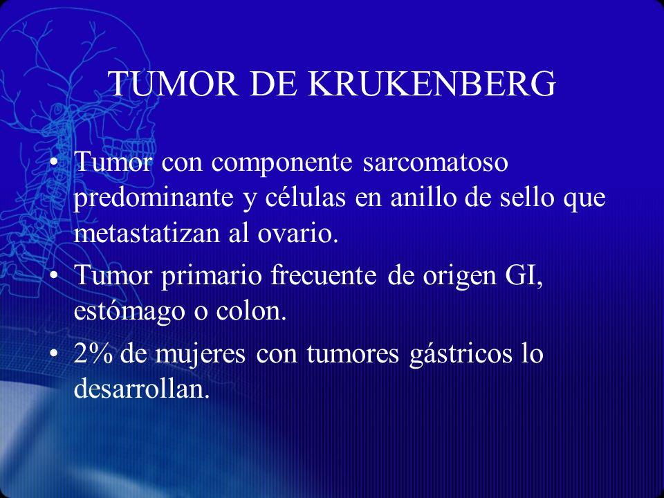 TUMOR DE KRUKENBERG Tumor con componente sarcomatoso predominante y células en anillo de sello que metastatizan al ovario. Tumor primario frecuente de