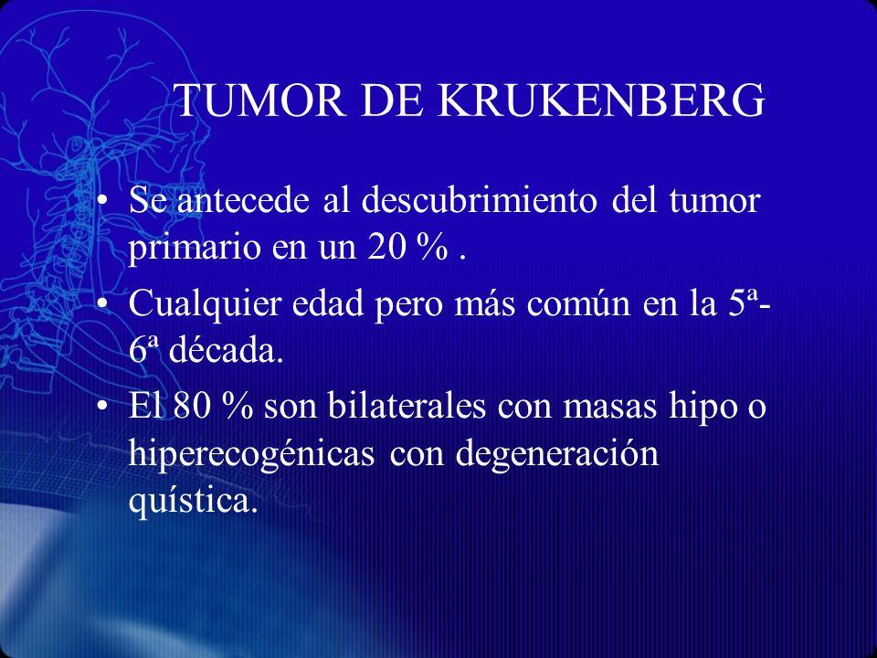 TUMOR DE KRUKENBERG Se antecede al descubrimiento del tumor primario en un 20 %. Cualquier edad pero más común en la 5ª- 6ª década. El 80 % son bilate