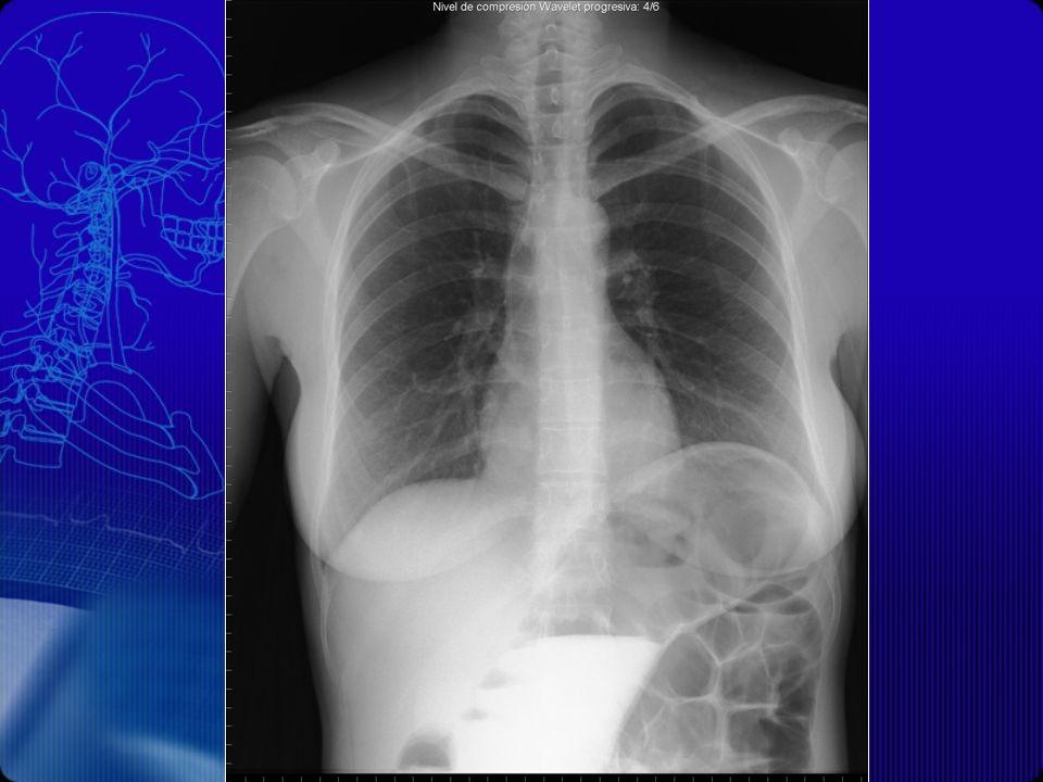RX PA DE TÓRAX No se observan imágenes de masas ni otras que sugieran proceso inflamatorio o neoformativo.