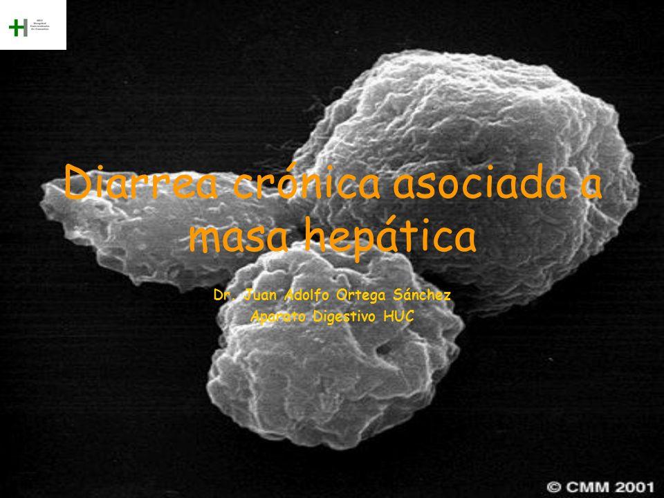 Diarrea crónica asociada a masa hepática Dr. Juan Adolfo Ortega Sánchez Aparato Digestivo HUC