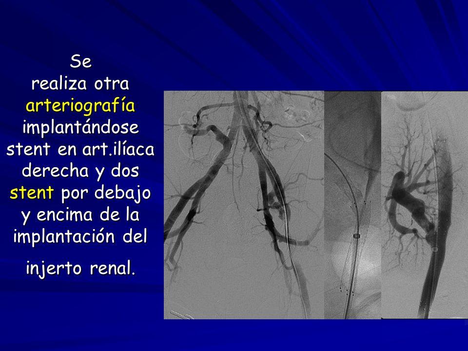 Se realiza otra arteriografía implantándose stent en art.ilíaca derecha y dos stent por debajo y encima de la implantación del injerto renal.