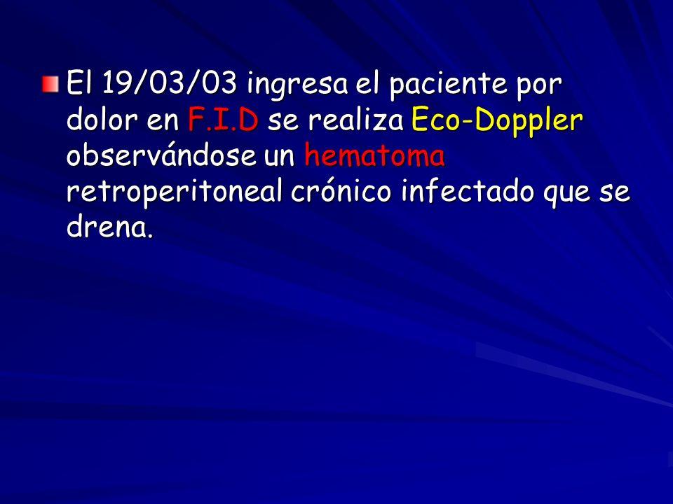 El 19/03/03 ingresa el paciente por dolor en F.I.D se realiza Eco-Doppler observándose un hematoma retroperitoneal crónico infectado que se drena.