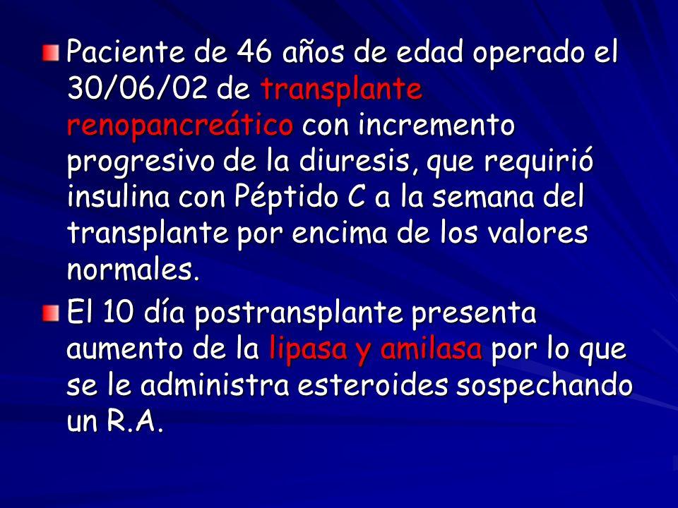 Paciente de 46 años de edad operado el 30/06/02 de transplante renopancreático con incremento progresivo de la diuresis, que requirió insulina con Pép