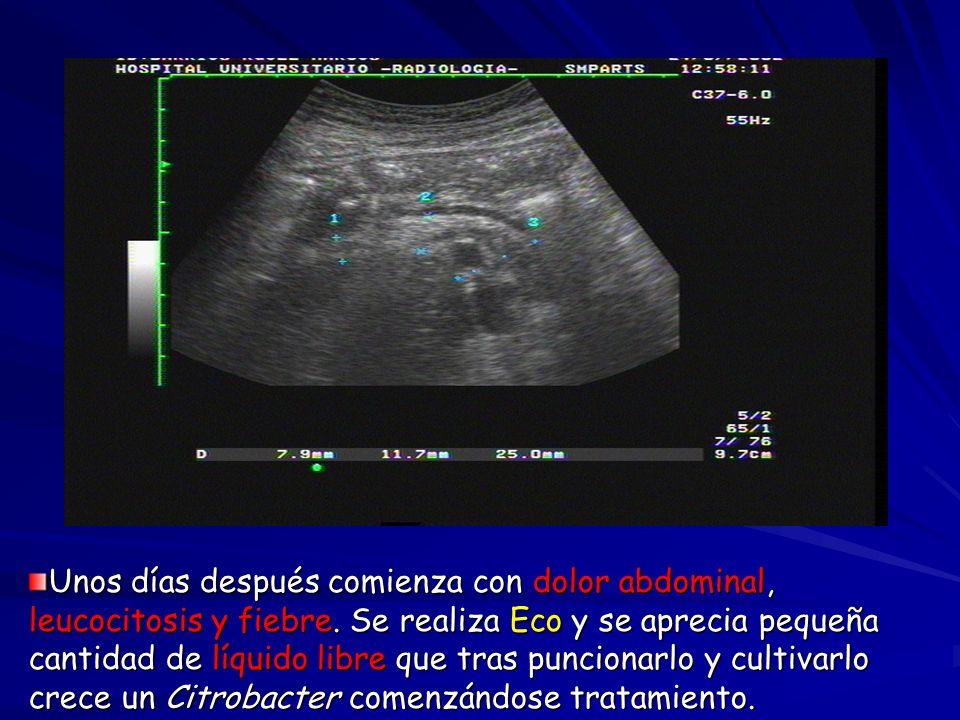 Frec.De complicaciones en HUC: R. A gudo Infección Estenosis arterial Hemorrag.Retrop.