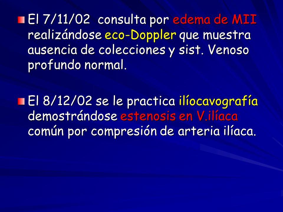 El 7/11/02 consulta por edema de MII realizándose eco-Doppler que muestra ausencia de colecciones y sist. Venoso profundo normal. El 8/12/02 se le pra