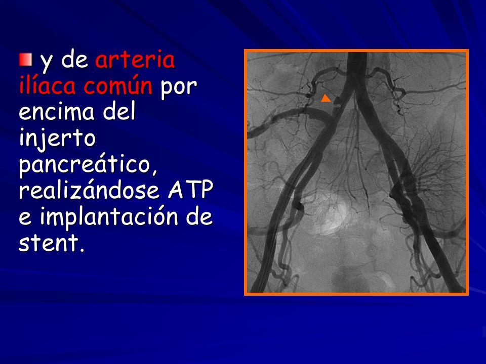 y de arteria ilíaca común por encima del injerto pancreático, realizándose ATP e implantación de stent. y de arteria ilíaca común por encima del injer