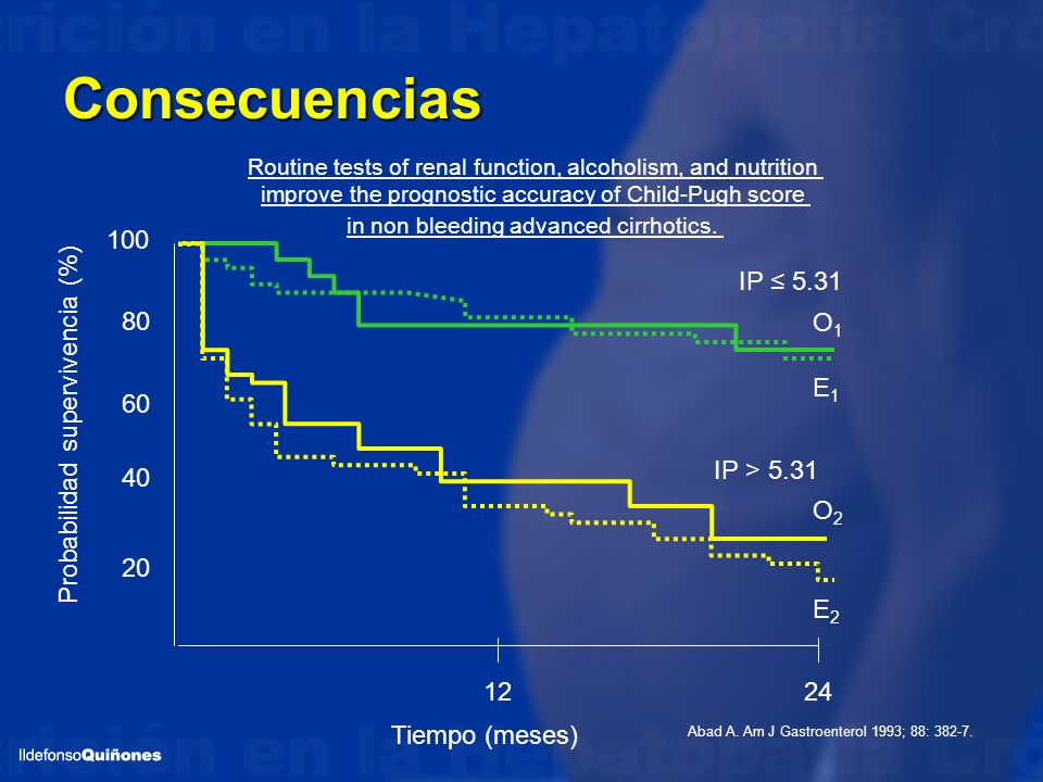 Consecuencias Routine tests of renal function, alcoholism, and nutrition improve the prognostic accuracy of Child-Pugh score in non bleeding advanced