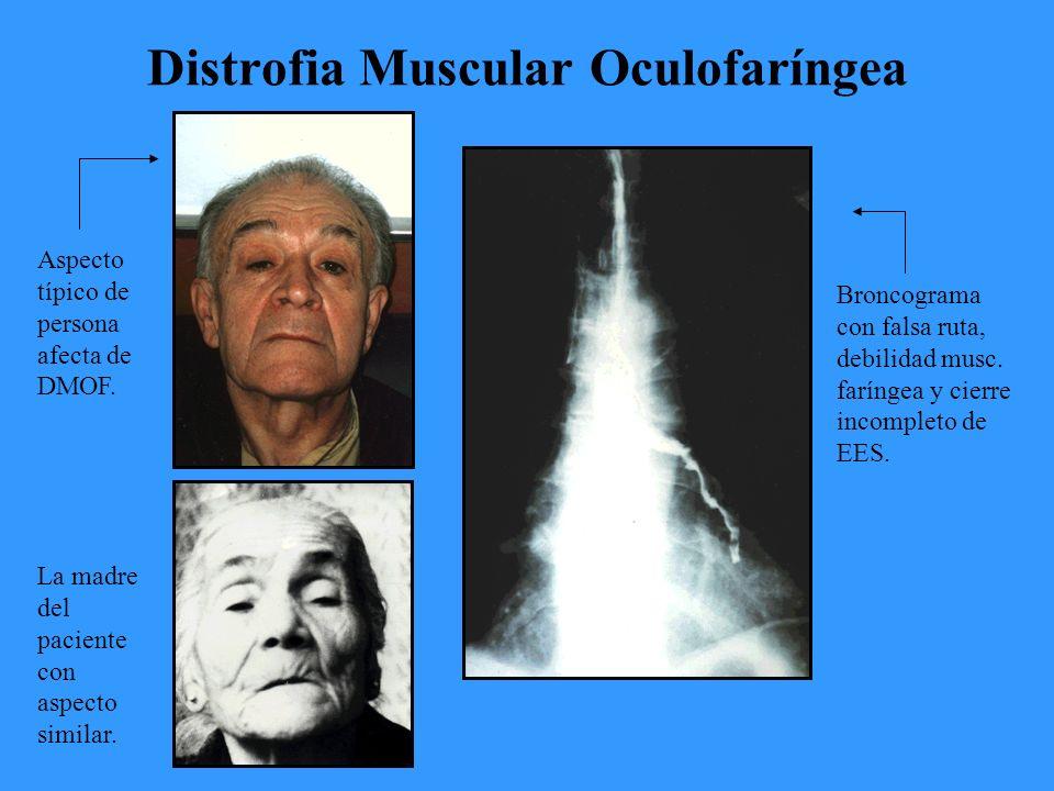 Distrofia Muscular Oculofaríngea Broncograma con falsa ruta, debilidad musc.