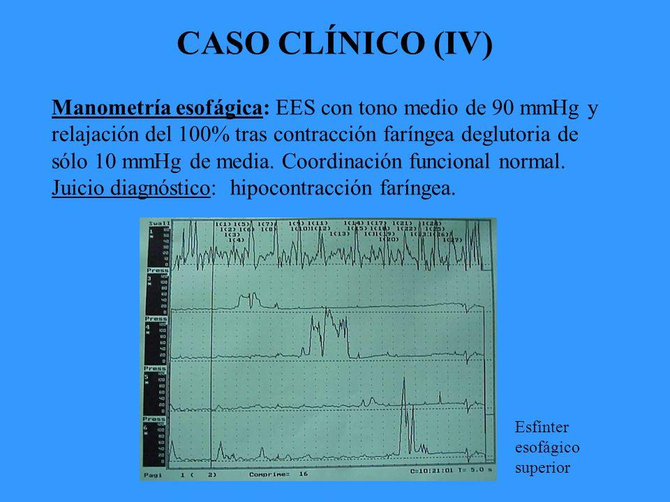 CASO CLÍNICO (IV) Manometría esofágica: EES con tono medio de 90 mmHg y relajación del 100% tras contracción faríngea deglutoria de sólo 10 mmHg de media.