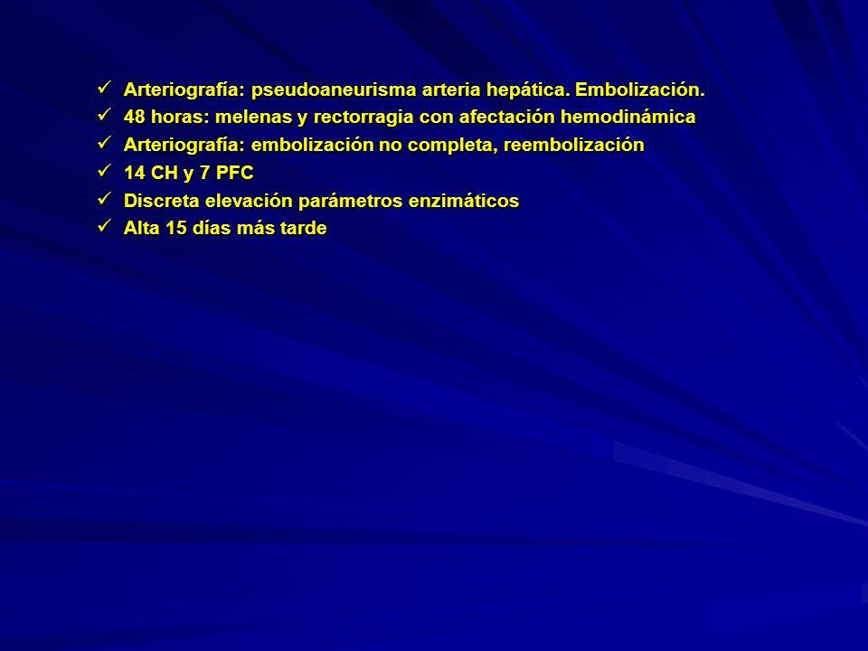 Arteriografía: pseudoaneurisma arteria hepática. Embolización. Arteriografía: pseudoaneurisma arteria hepática. Embolización. 48 horas: melenas y rect
