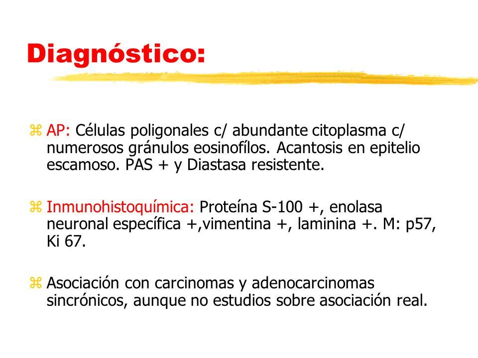 Diagnóstico: zAP: Células poligonales c/ abundante citoplasma c/ numerosos gránulos eosinofílos. Acantosis en epitelio escamoso. PAS + y Diastasa resi