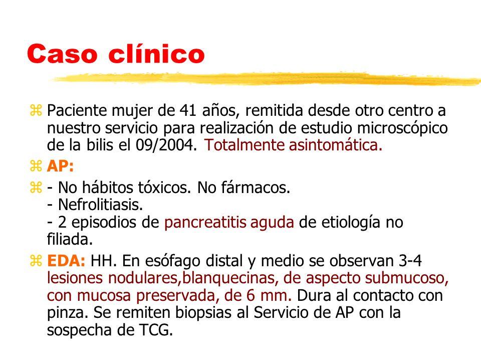 Caso clínico zPaciente mujer de 41 años, remitida desde otro centro a nuestro servicio para realización de estudio microscópico de la bilis el 09/2004