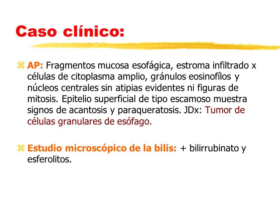 Caso clínico: zAP: Fragmentos mucosa esofágica, estroma infiltrado x células de citoplasma amplio, gránulos eosinofílos y núcleos centrales sin atipia